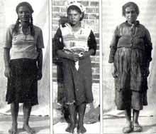 La «Collection» du professeur Hirt: trois femmes Tziganes